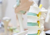 頚椎の病気